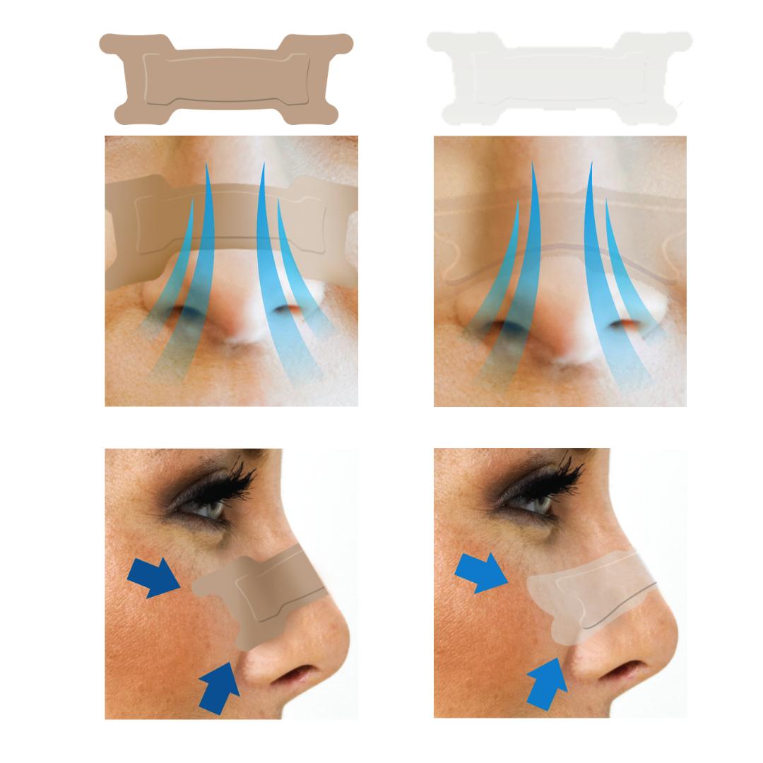 Nasal strip